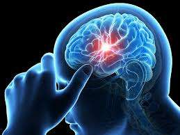 That Thing You Should Know About Brain Stem